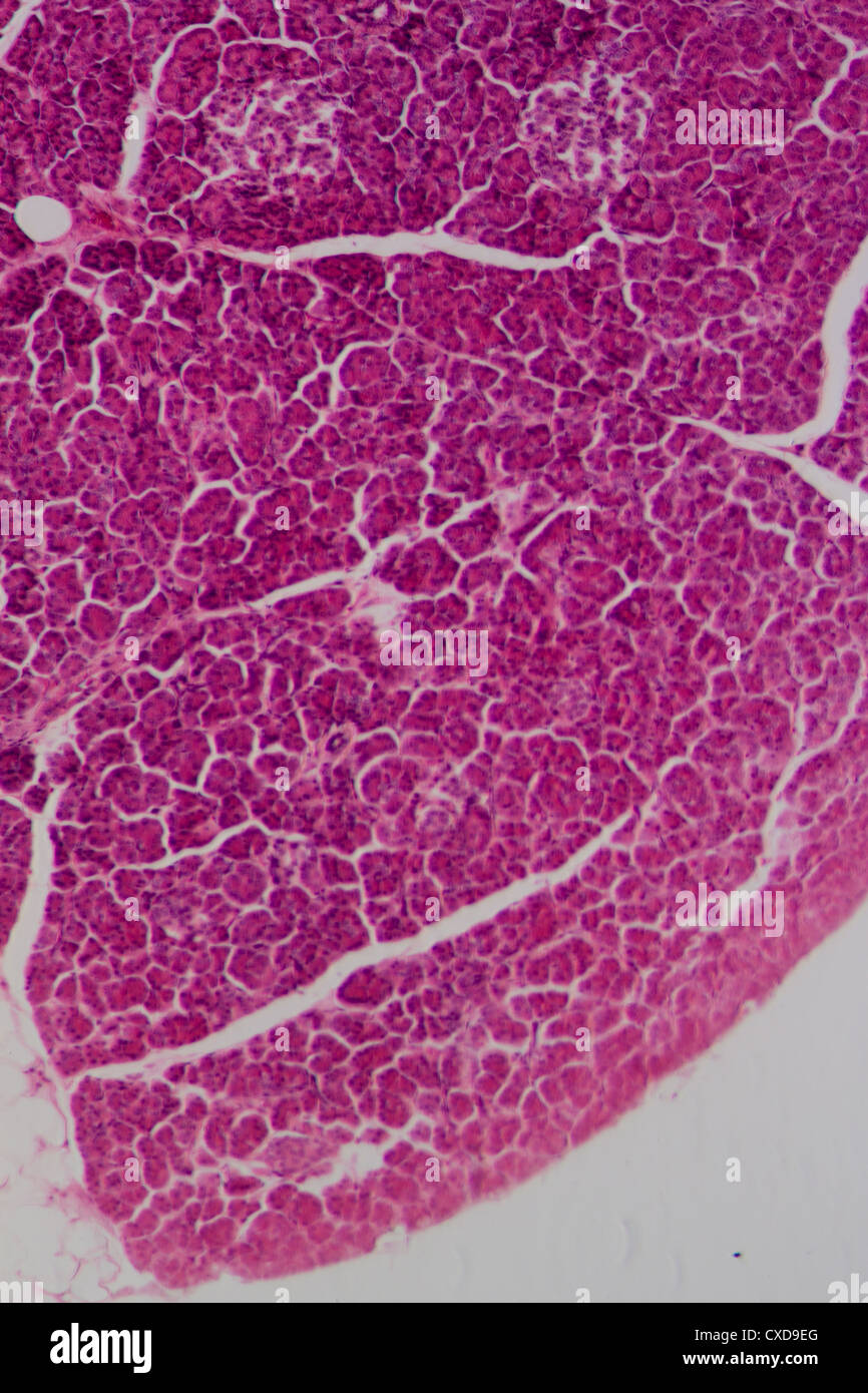 Human Liver Tissue Stock Photos Human Liver Tissue Stock Images