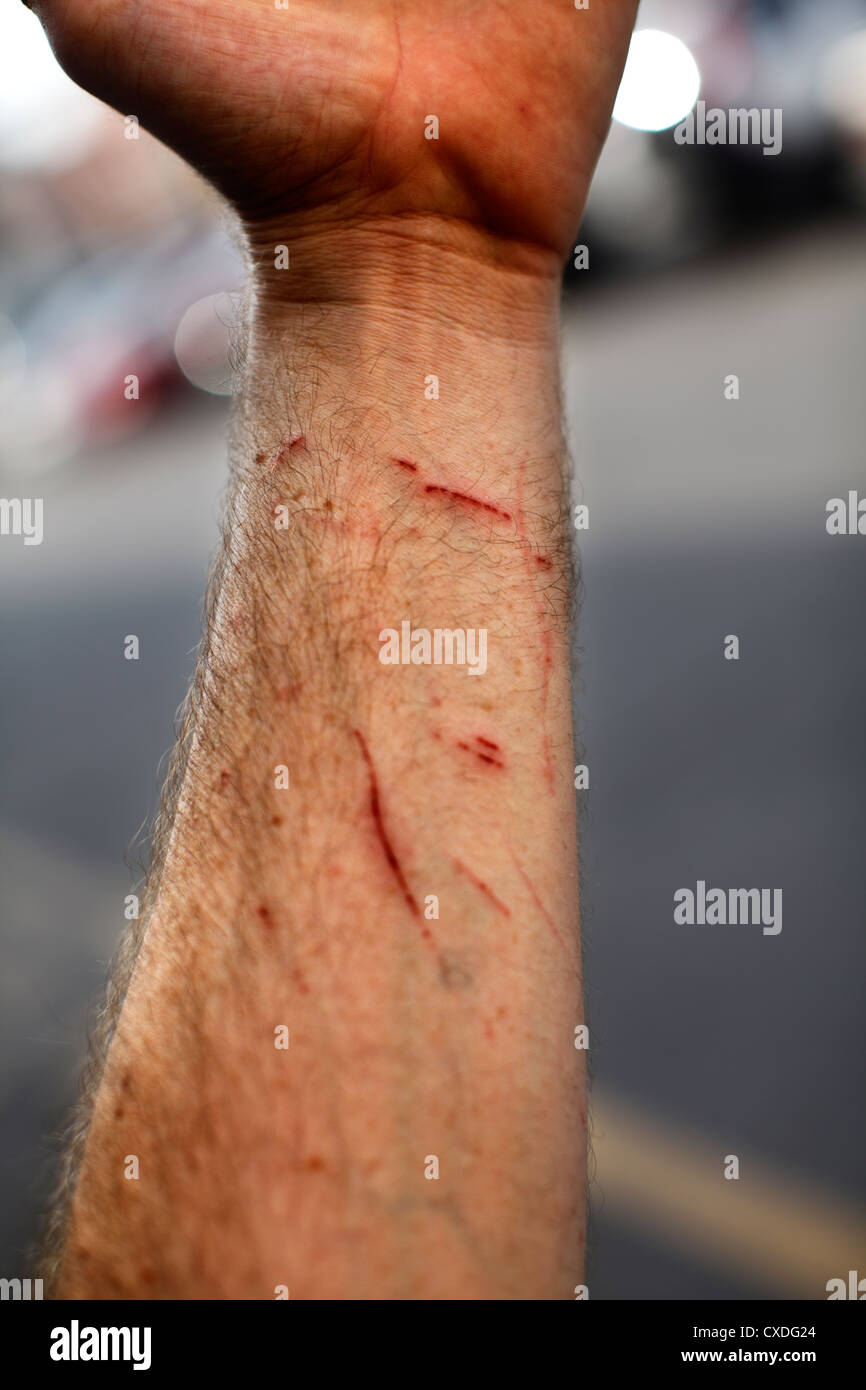 Male forearm with scratches. - Stock Image