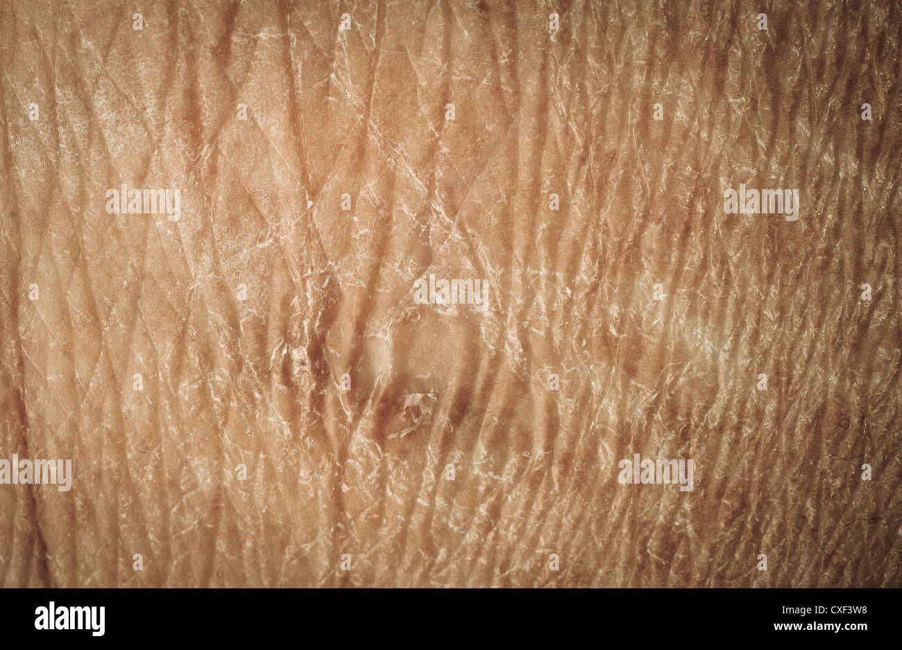 dry skin texture Stock Photo