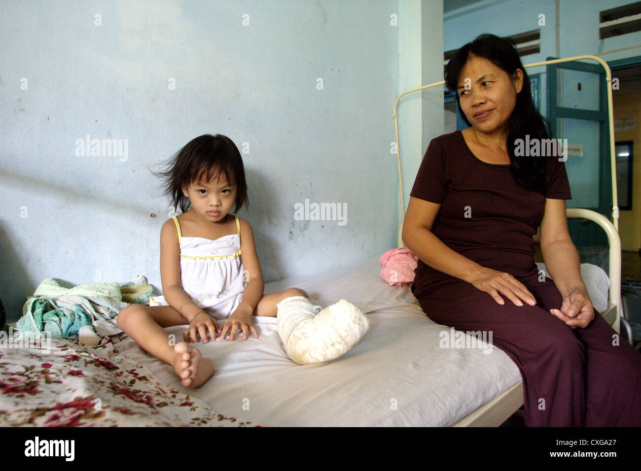 Girl with plaster foot in a hospital in Saigon - Stock Image
