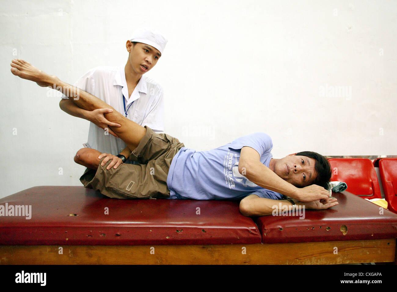 Therapeutic exercises on a leg amputee Orthopaedizentrum Saigon - Stock Image