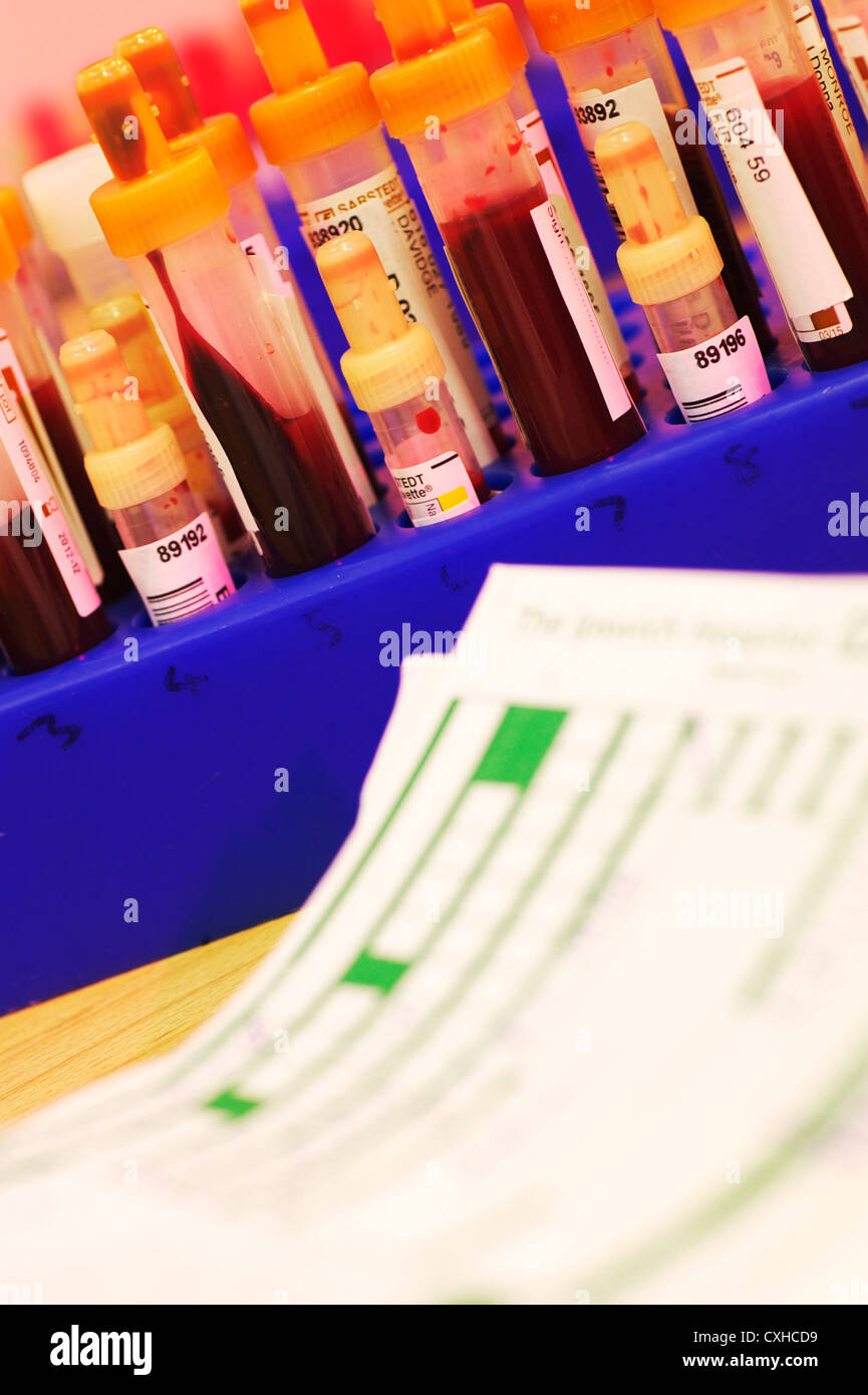 Blood samples along with green request forms in a pathology lab in UK hospital - Stock Image