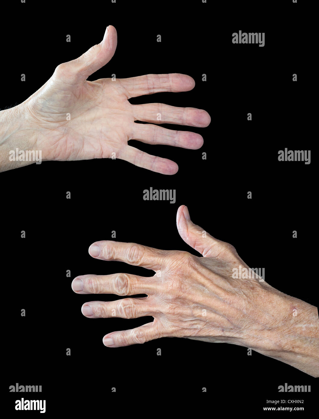 The front and back of an elderly woman's hands. The subject has arthritis and shows clear signs of aging. - Stock Image
