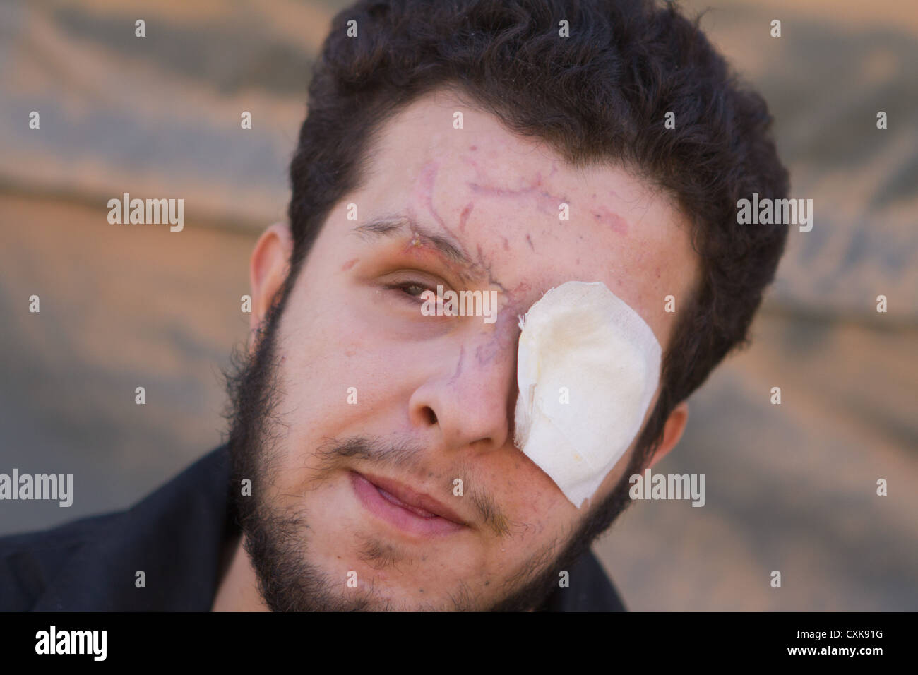 Abdel Ghafour Homsy a former Free Syrian Army (FSA) fighter from Homs sits in the Moroccan Medical and Surgical - Stock Image