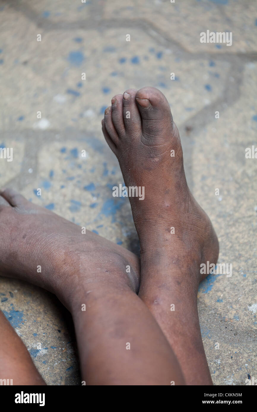 Feet of poor little Children sleeping on the pavement in Kolkata in India - Stock Image