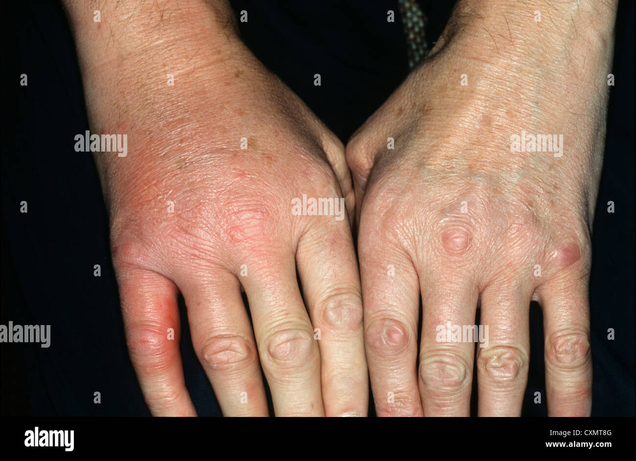 Cellulitis Affecting The Right Hand With Swelling