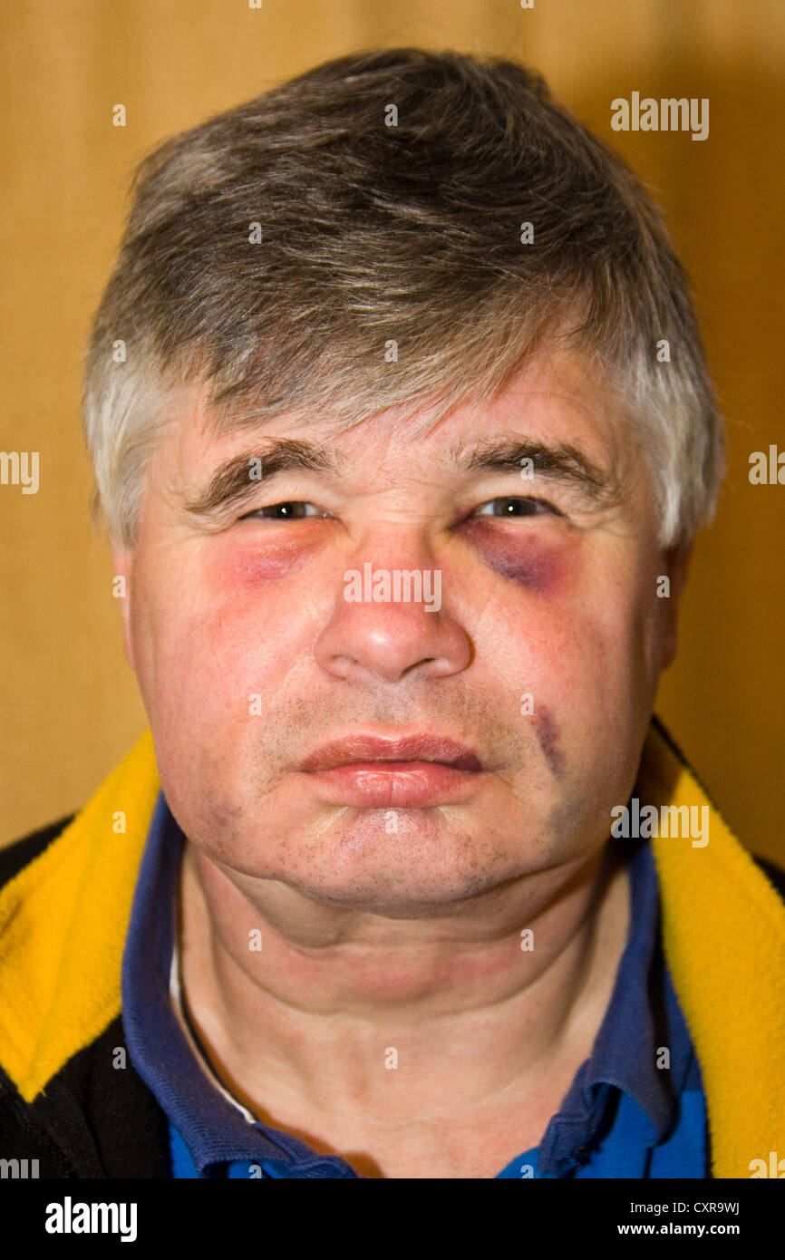 Facial injuries showing black eyes and bruising on a man as a result of dental treatment - Stock Image