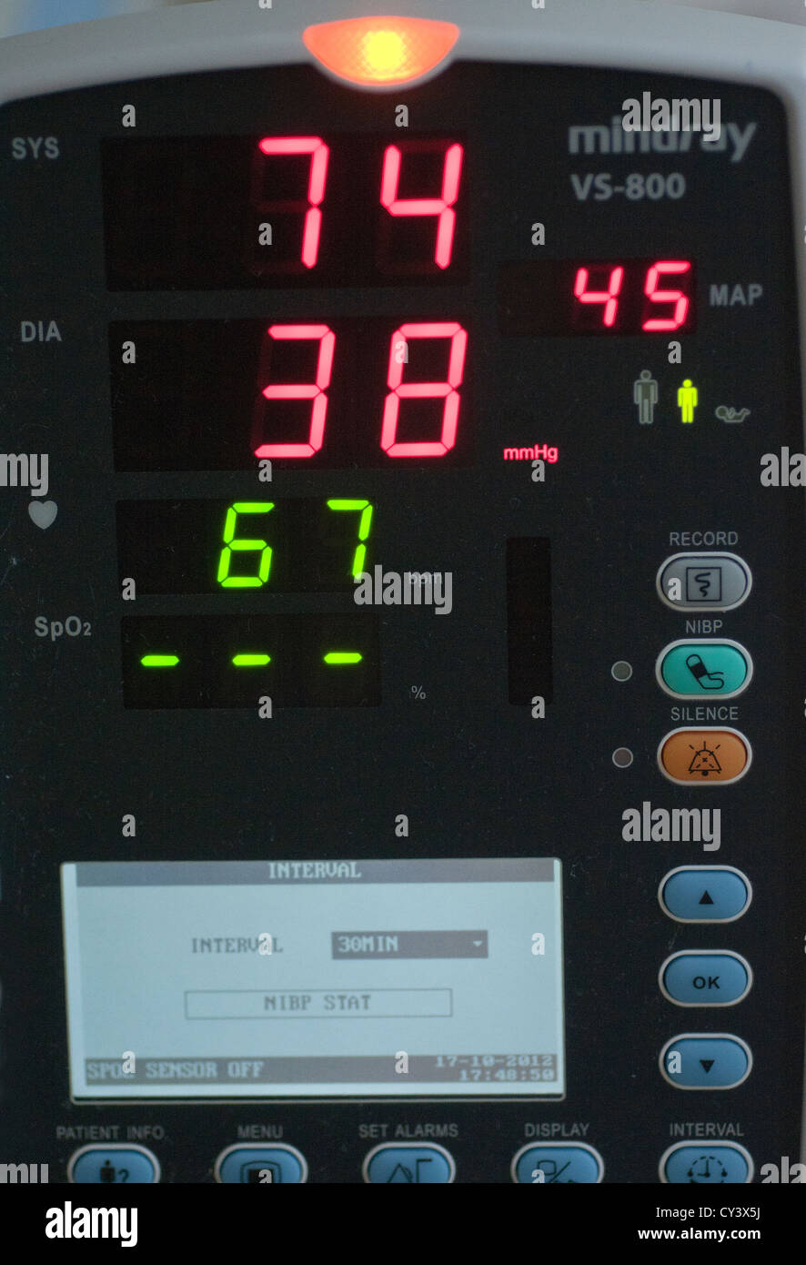 mindray hospital monitor,VS-800 is a compact, easy-to-use vital