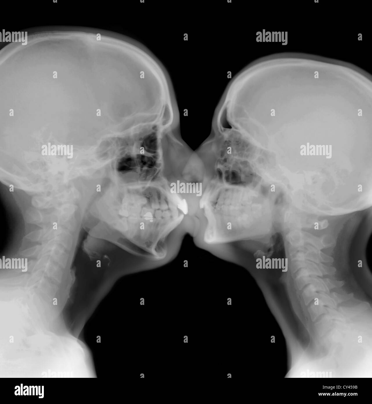 X-ray of a couple kissing - Stock Image