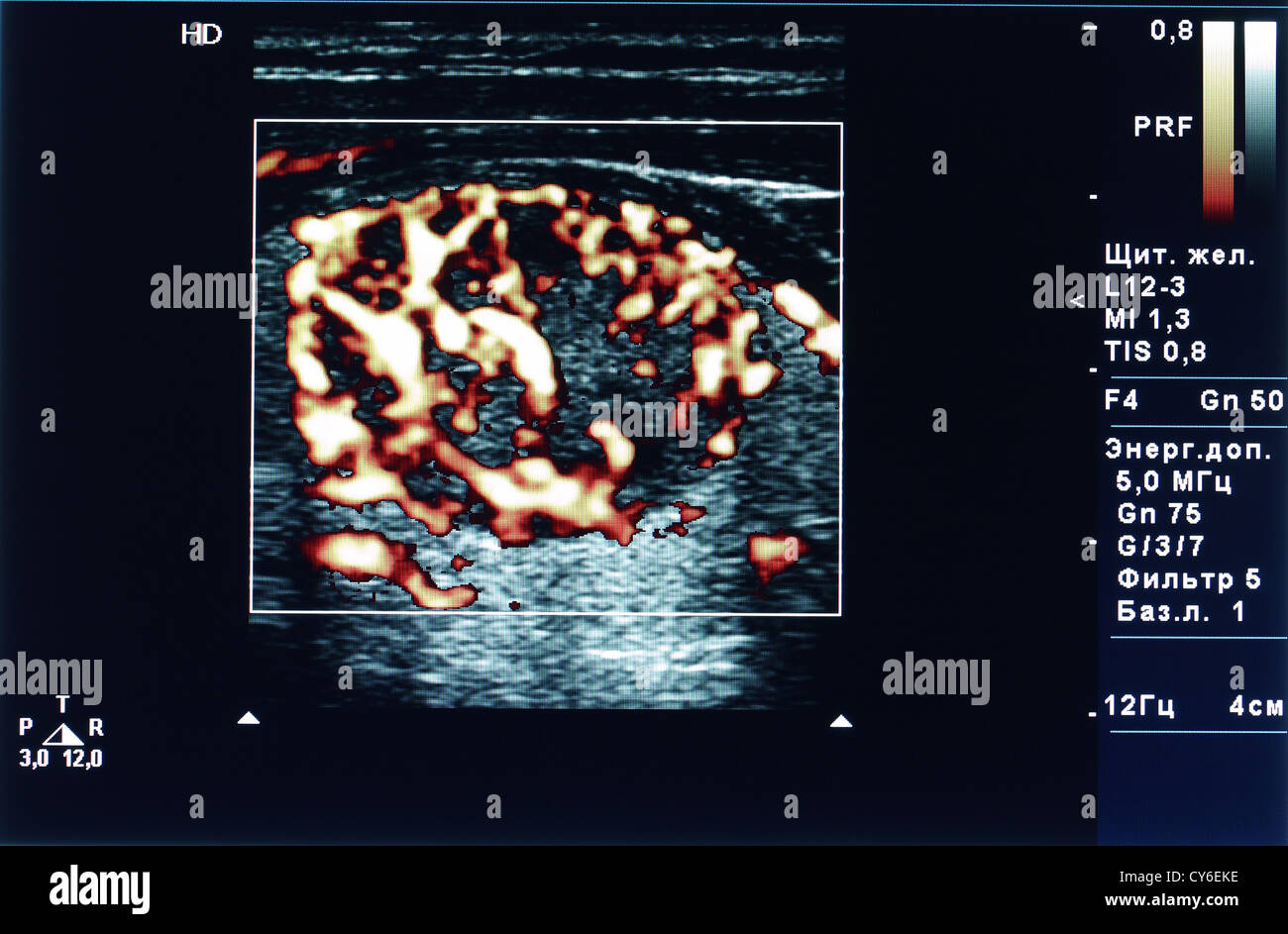 Thyroid Nodule Tumor Power Doppler Ultrasound Stock Photo Alamy