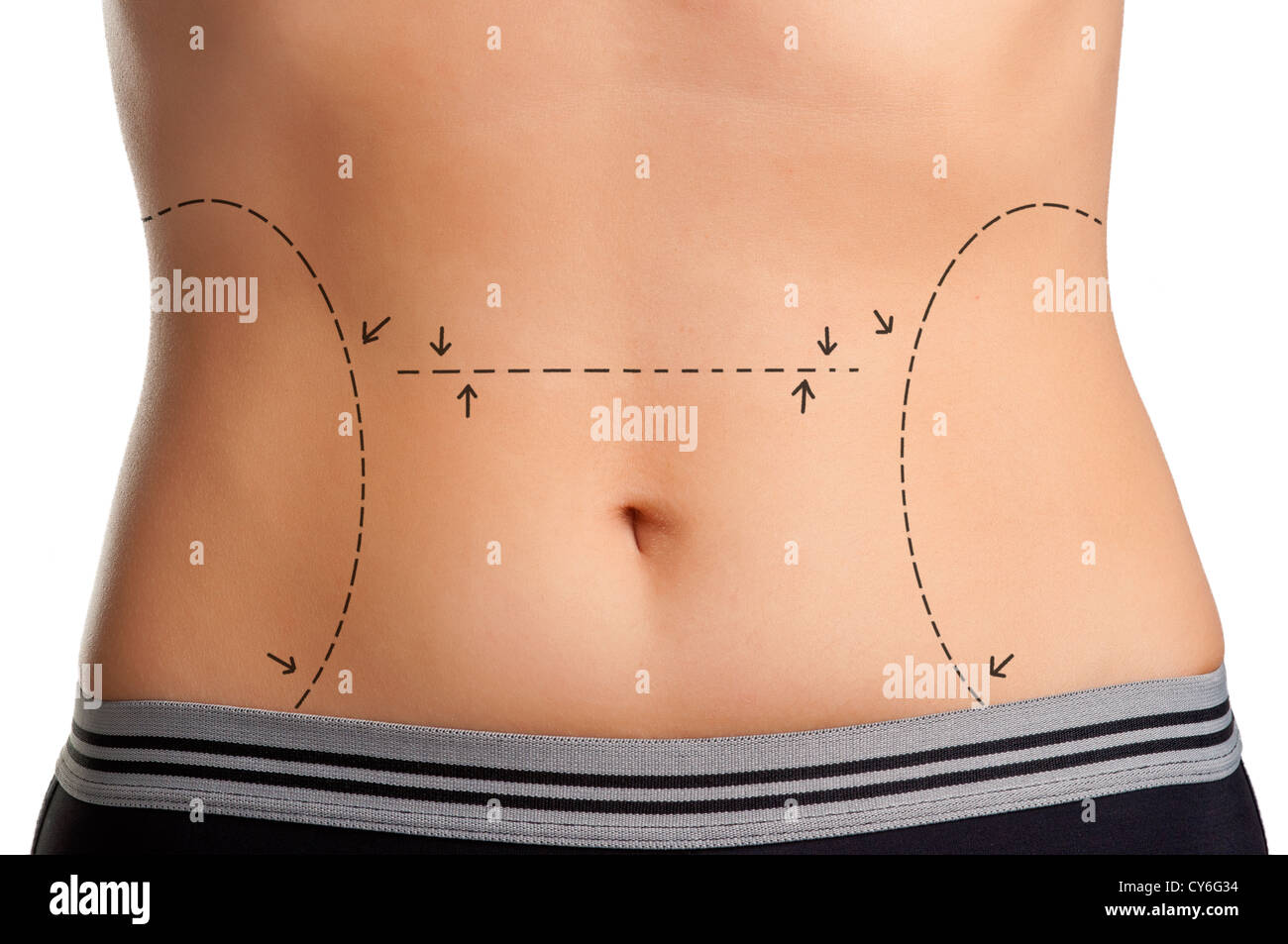 Tummy marked for plastic surgery - Stock Image