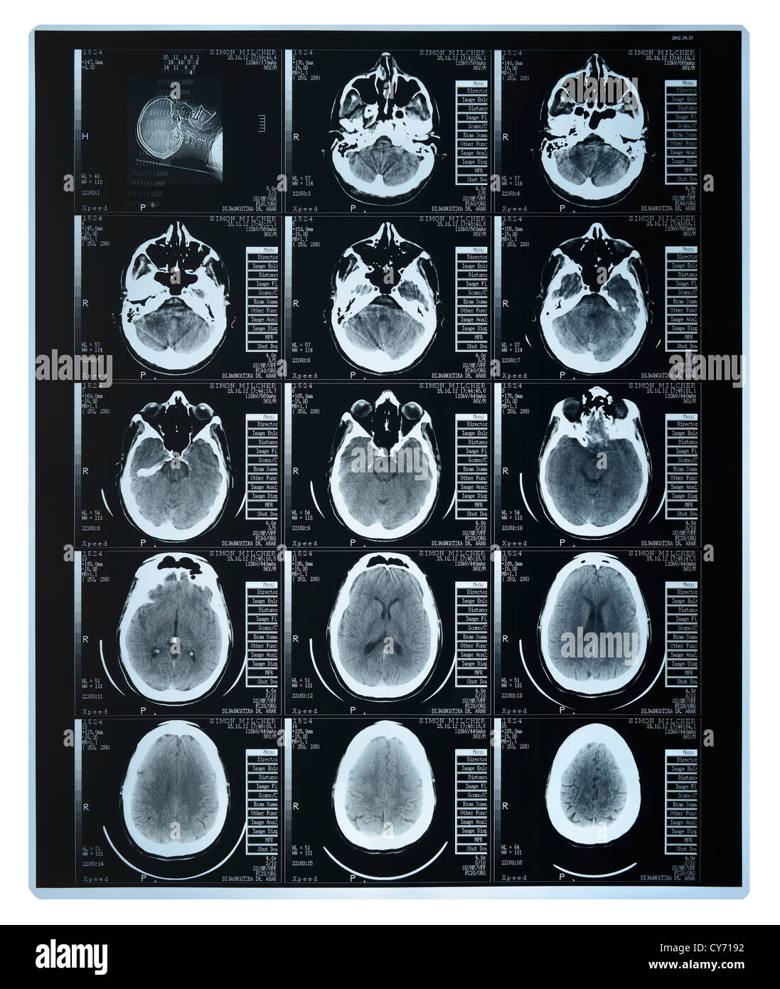 Cat Scan of a Brain - Stock Image