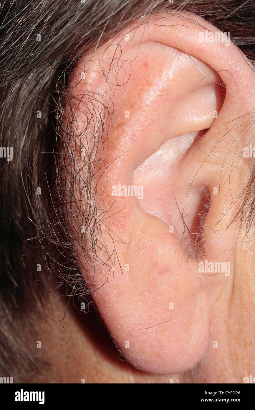 Hypertrichosis (excessive hairiness) of the ear rims - Stock Image