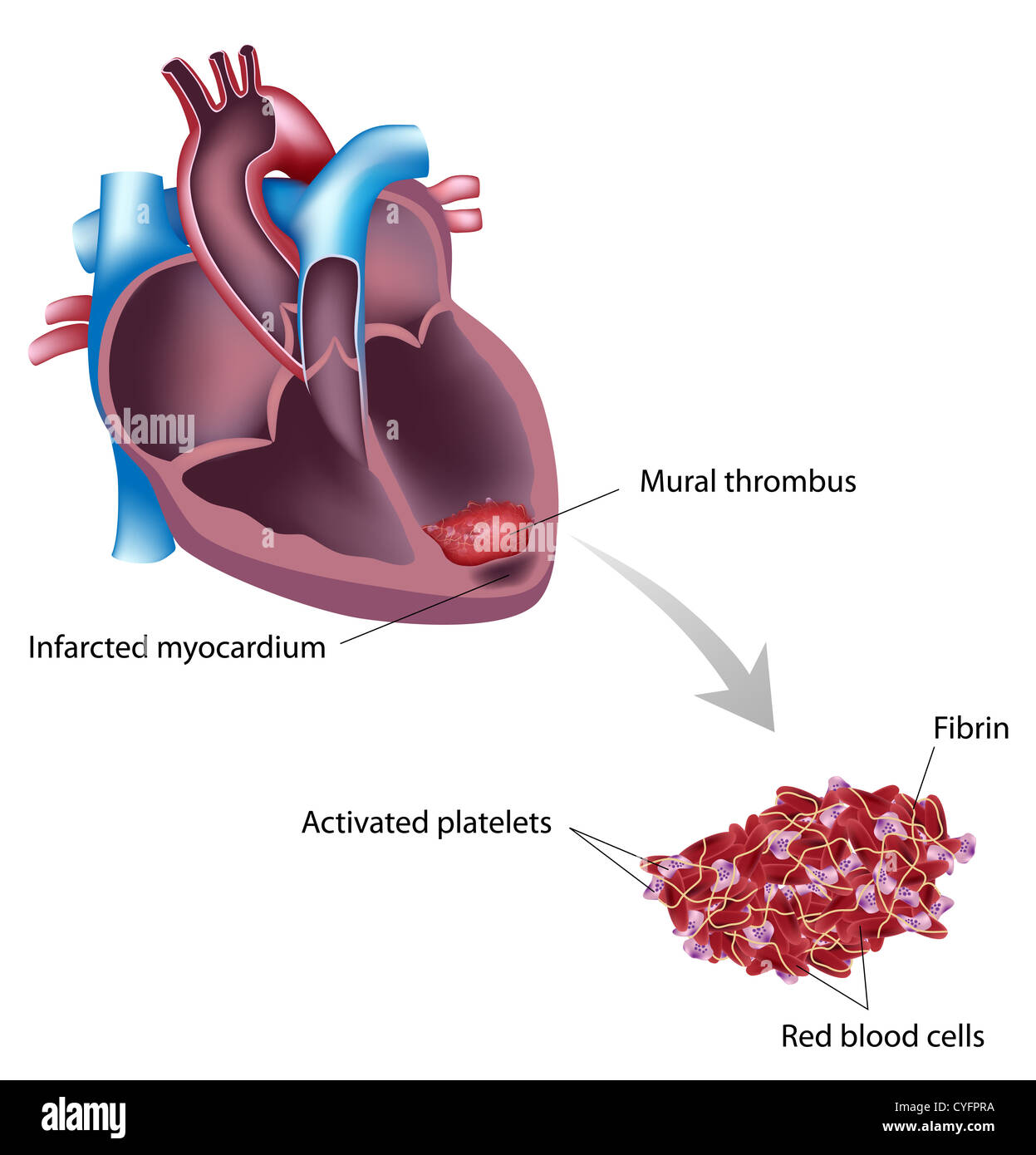 Mural thrombus of heart