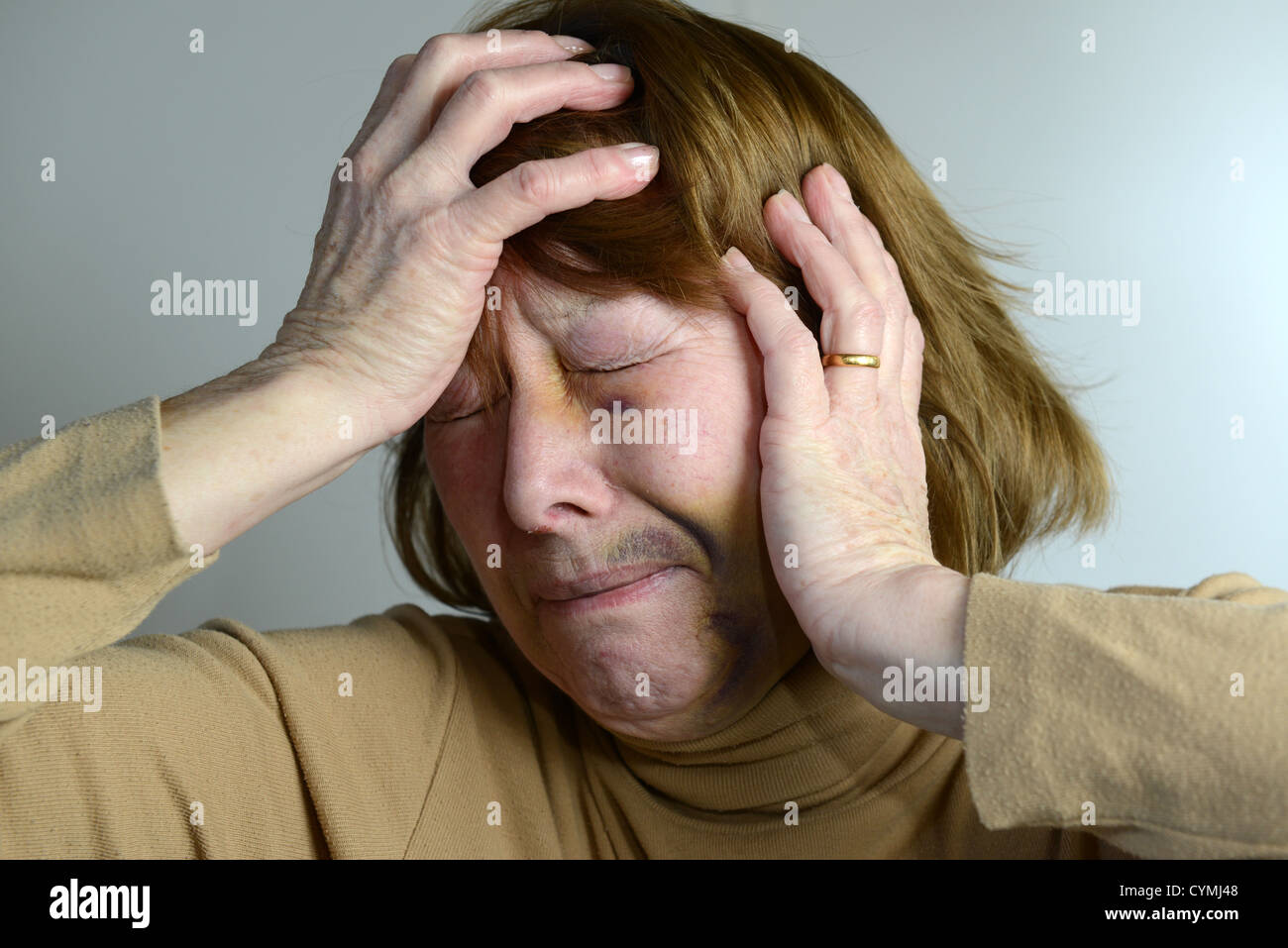 Domestic violence Battered and bruised woman portraying domestic violence - Stock Image