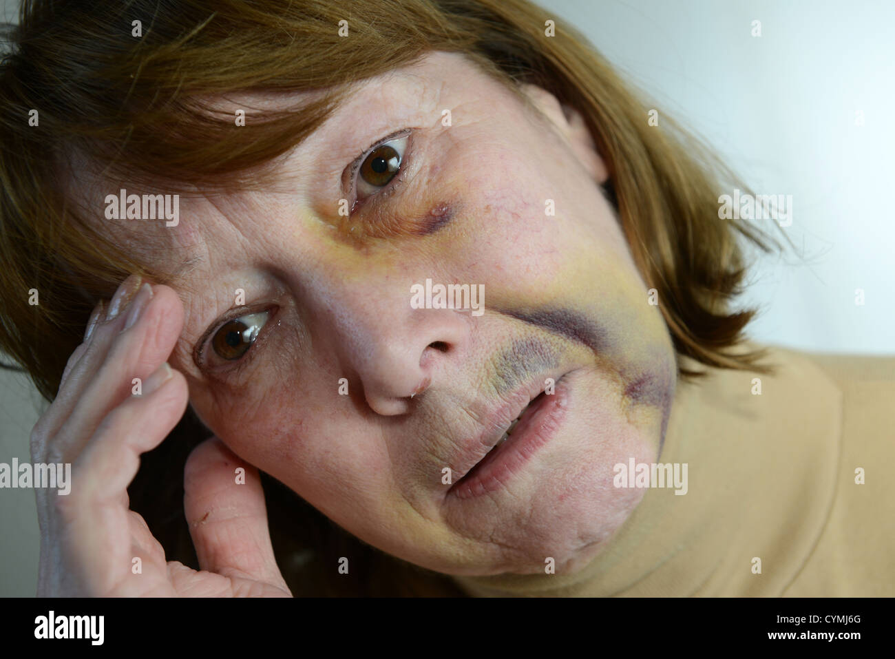 Battered and bruised woman portraying domestic violence - Stock Image