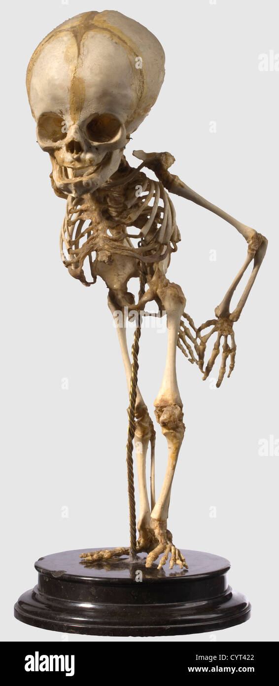 A German skeleton prepared for pathological or anatomical studies, 19th Century Elaborately prepared, complete skeleton Stock Photo