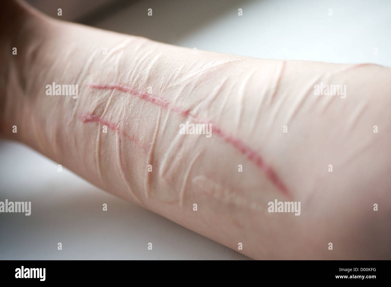 hand with fresh and old scars of self destroyer Stock Photo