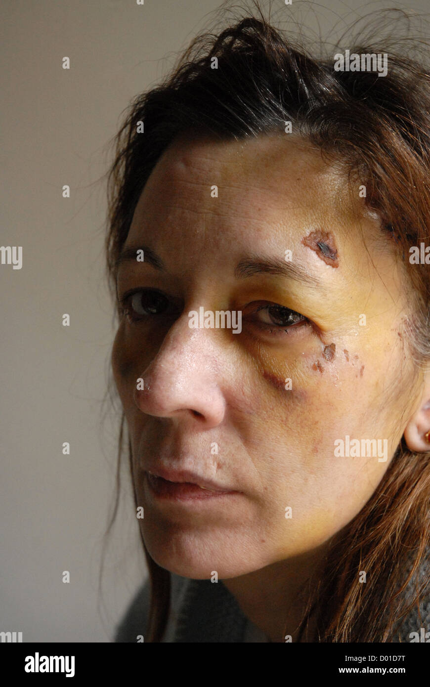 women victim of abuse - Stock Image