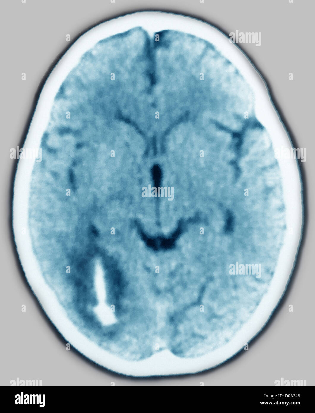 HEMORRHAGE, BRAIN SCAN - Stock Image