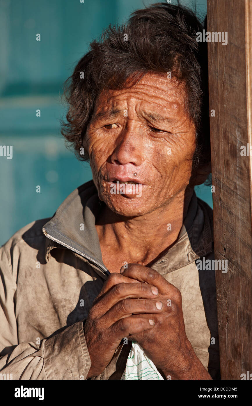 A man with a severe dermatological disorder in Num Village, eastern Nepal. - Stock Image