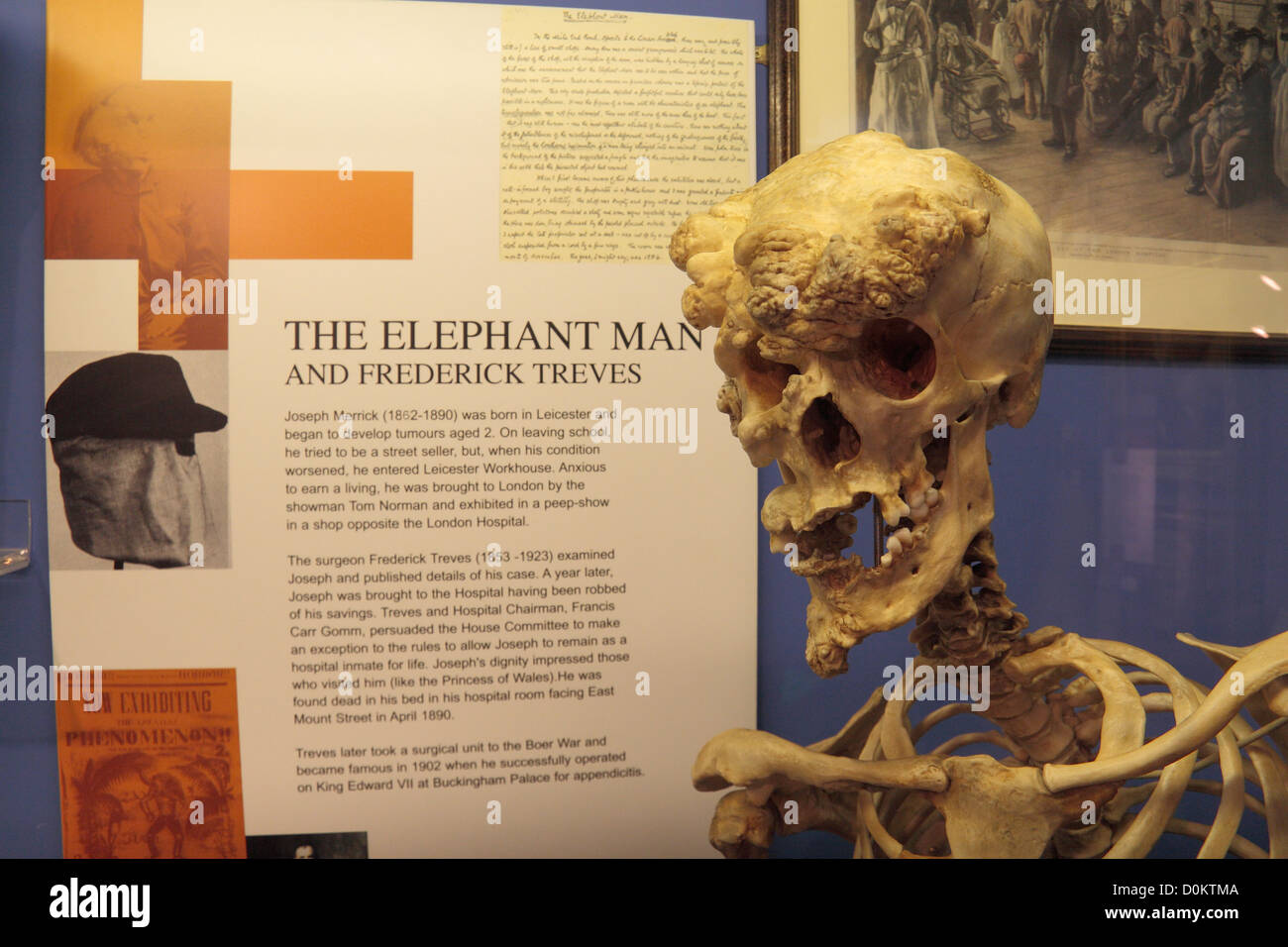 themes joseph merrick and elephant man Analysis of the elephant man  neurofibratosis, the condition from which joseph merrick suffered (legendre 6) caused him great pain and immense self-hate.