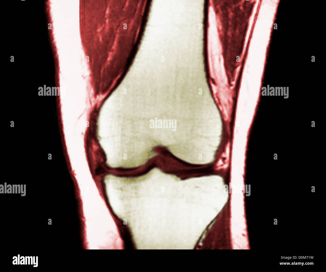 MRI Scan of the Left Knee, Front View, Showing a Medial Meniscus ...