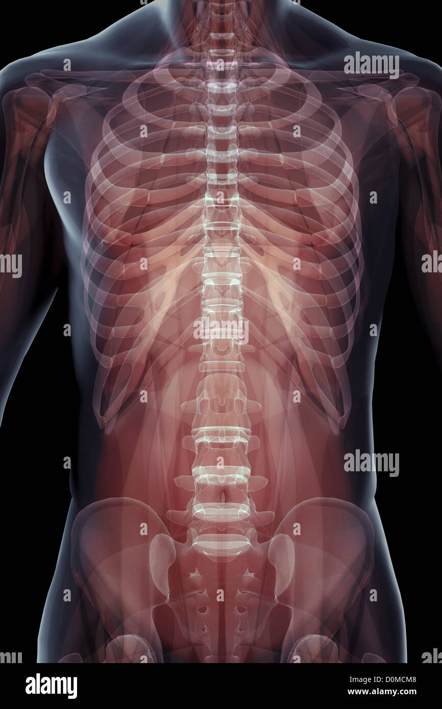 X Ray Image Showing The Skeletal Structure Of The Human Thorax Rib