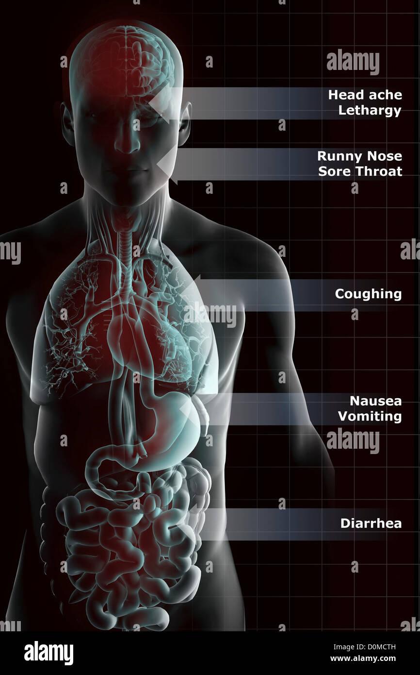 Diagram showing the symptoms of the H1N1 swine flu virus. - Stock Image