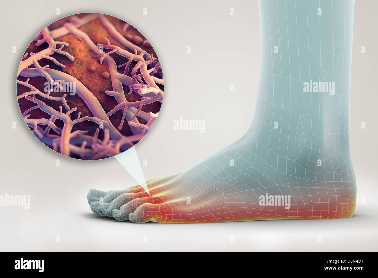 A left foot wireframe appearance. foot is highlighted represent presence fungal infection known as Athlete's - Stock Image