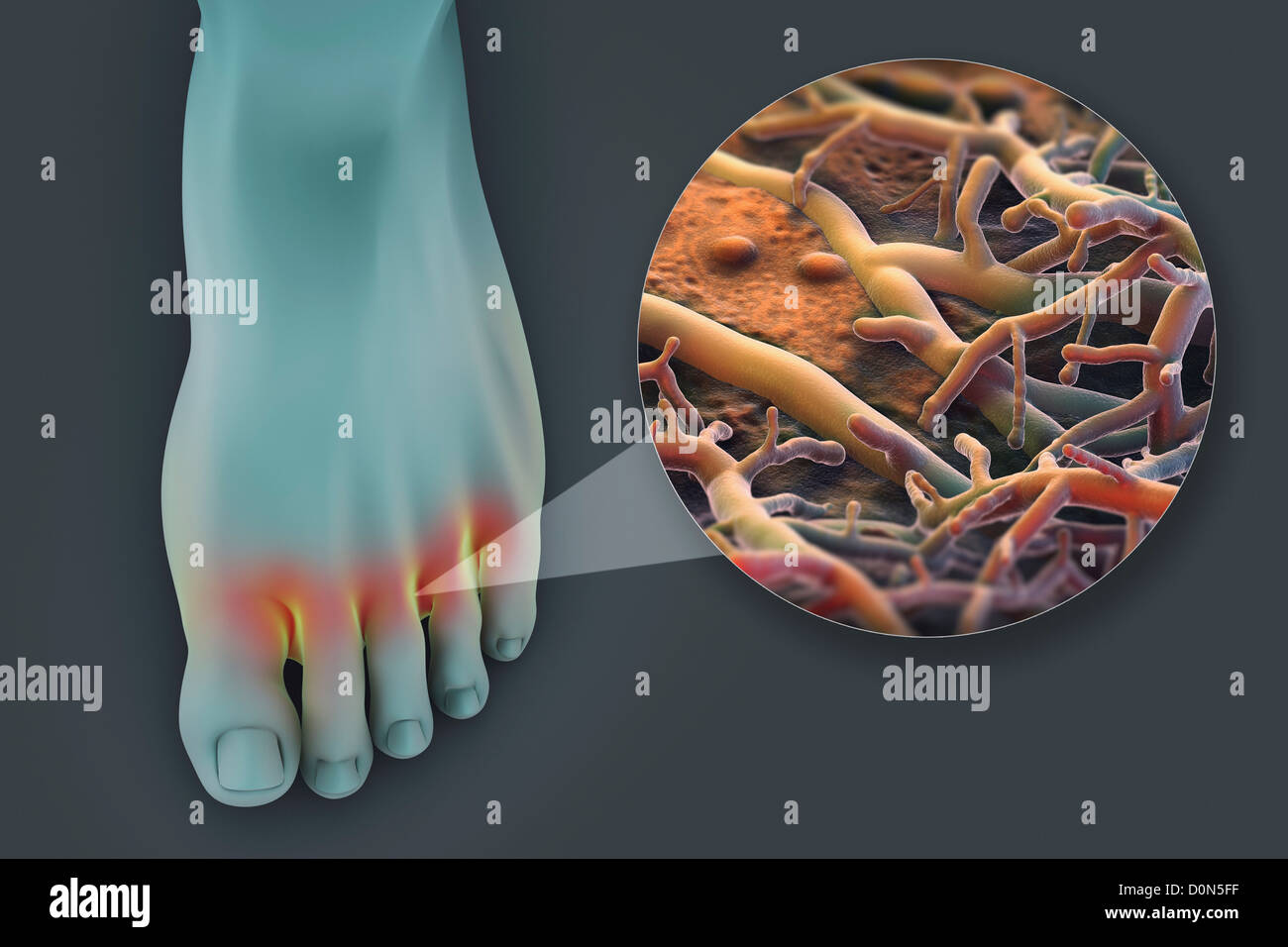 A left foot glowing appearance. foot is highlighted represent presence fungal infection known as Athlete's foot. - Stock Image