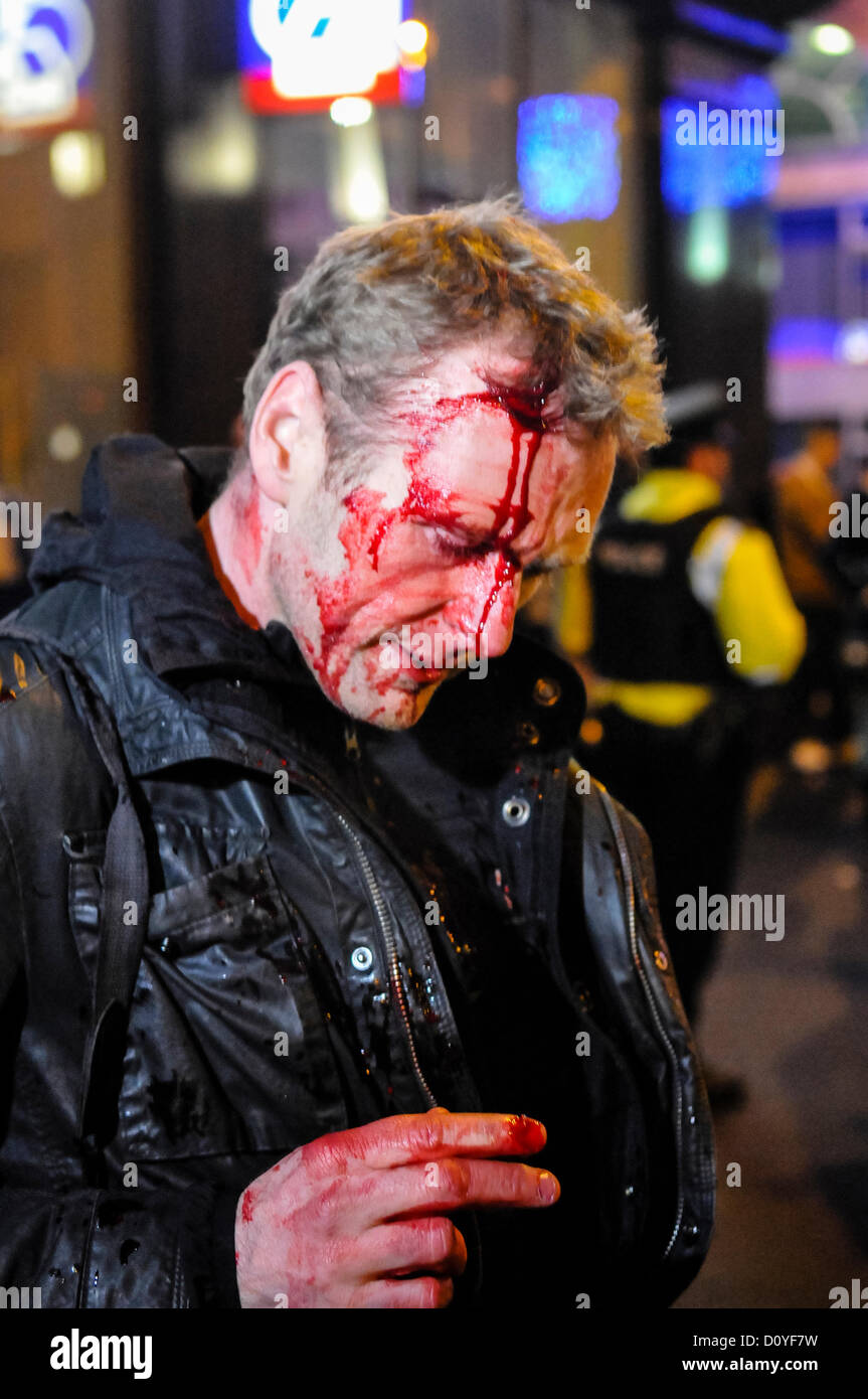 3rd December 2012, Belfast, Northern Ireland. A press photographer suffers injury to his head and hand, after being - Stock Image