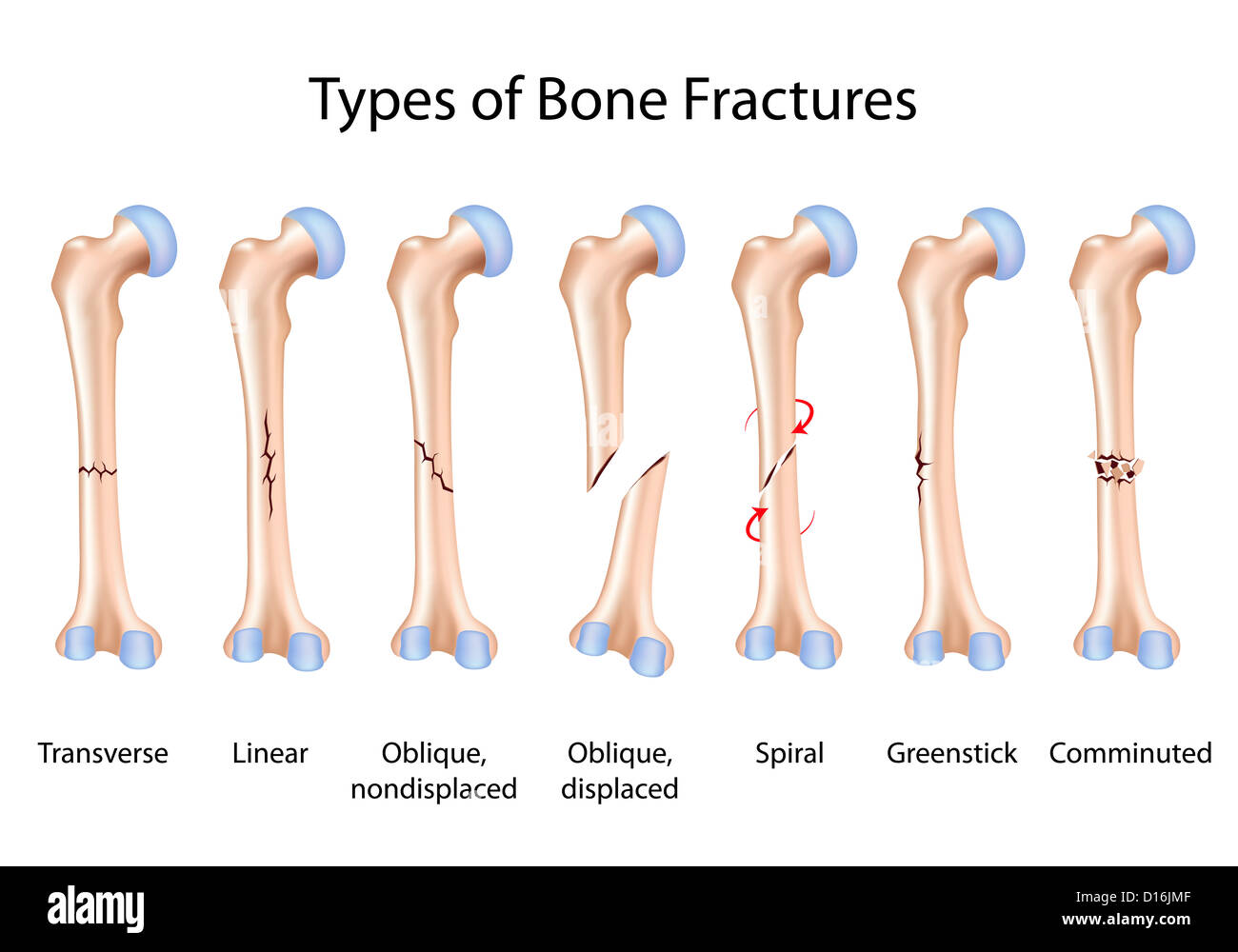 Types Of Bone Fractures Stock Photo 52392159 Alamy