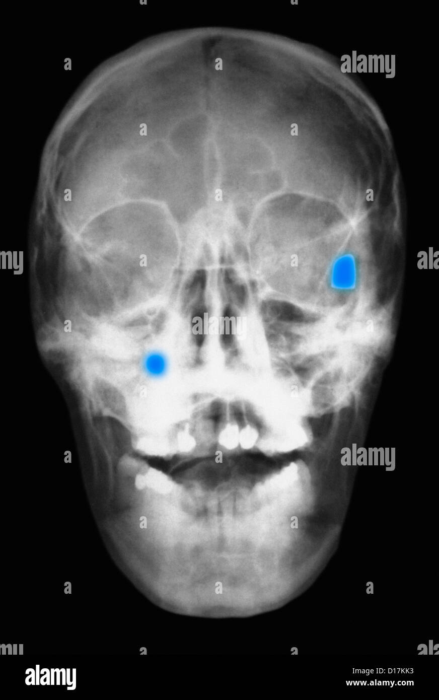 X-ray of head showing two bullets in the skull - Stock Image