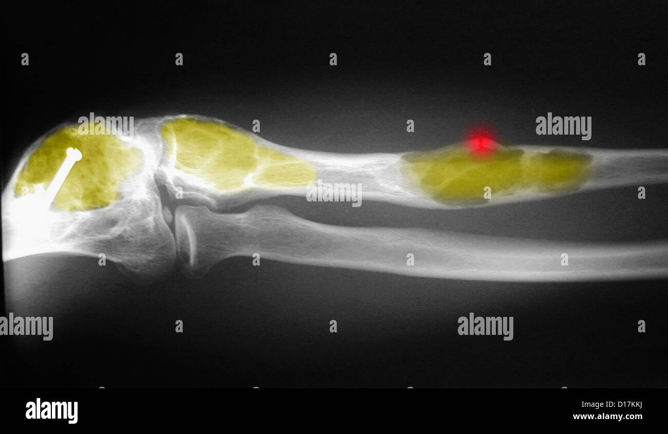 X-ray of ulna and humerous with fibrous dysplasia - Stock Image
