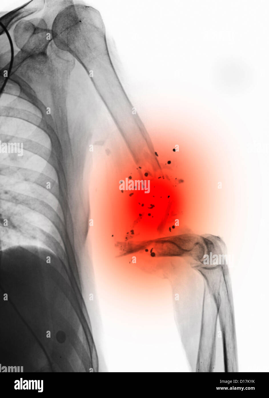 X-ray of upper arm with a gunshot wound - Stock Image