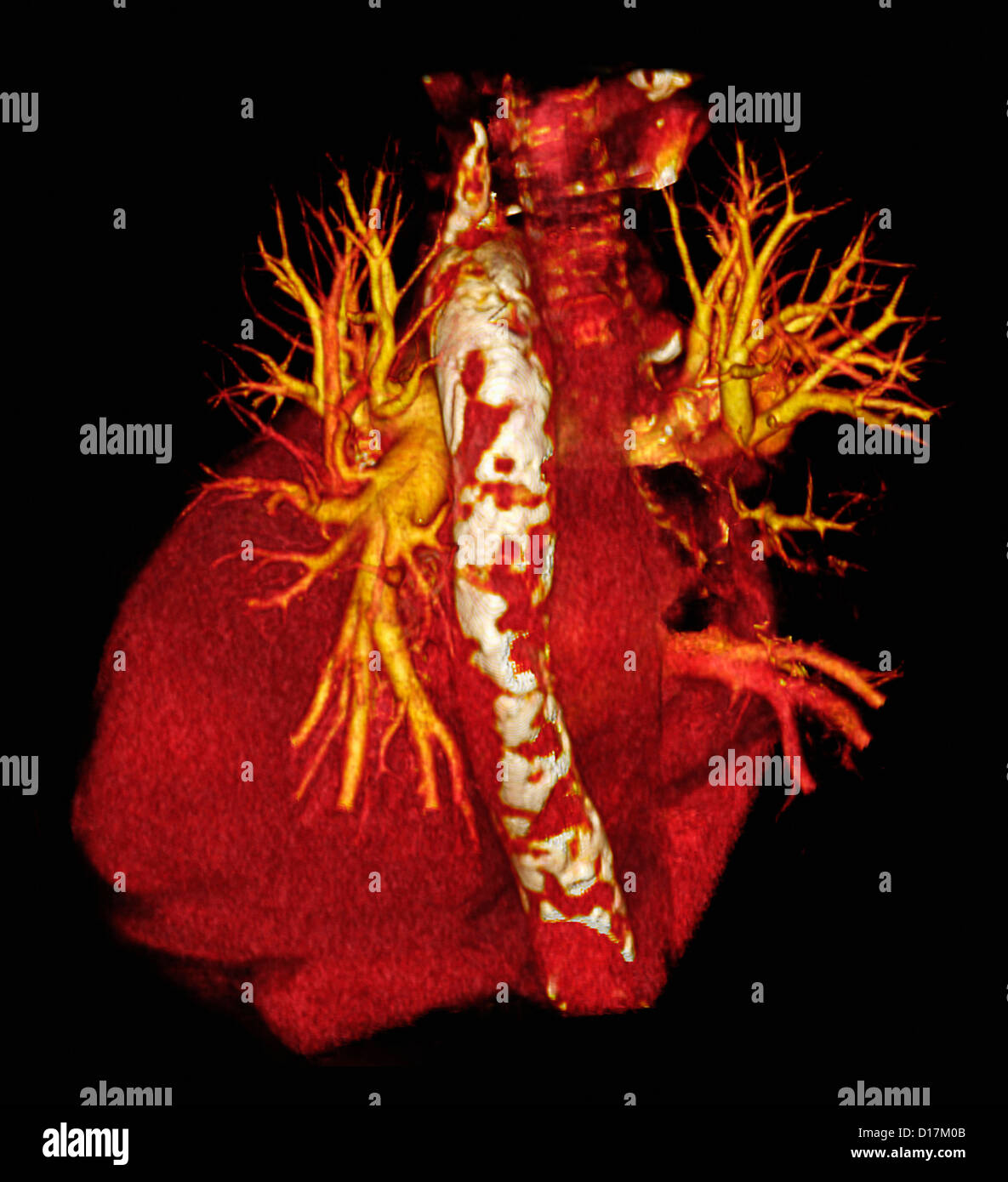 CT scan of heart with calcific aorta - Stock Image