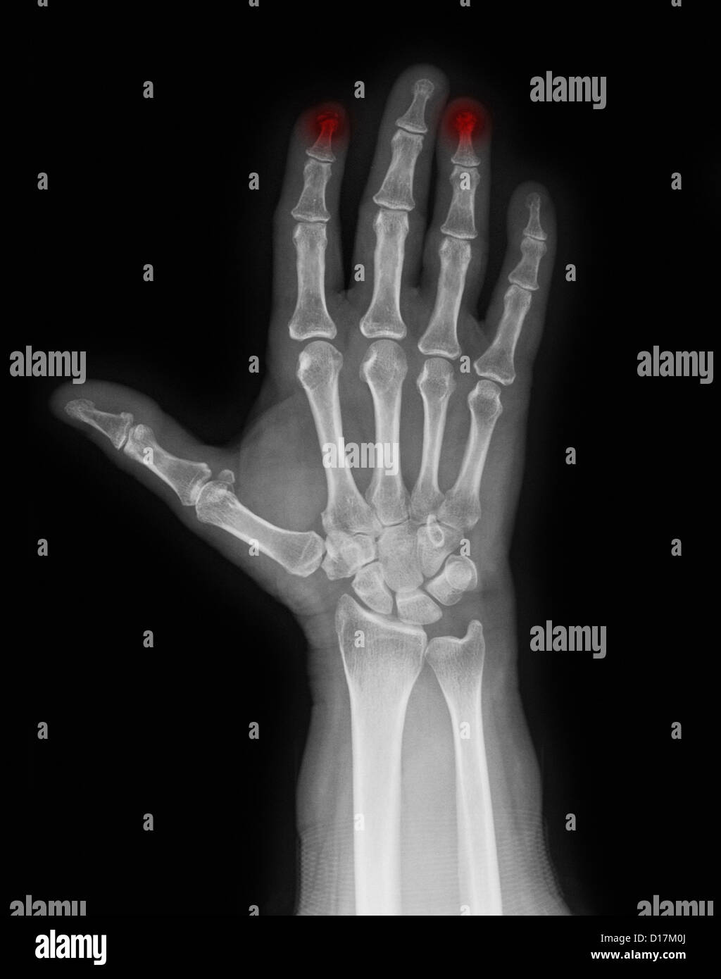 X-ray of hand with crushed index finger - Stock Image
