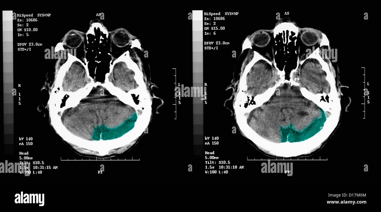 CT scan of elderly man with old occipital infarct - Stock Image