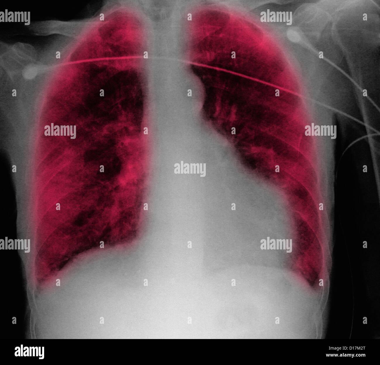 CXR of old man, congestive heart failure, anemia - Stock Image