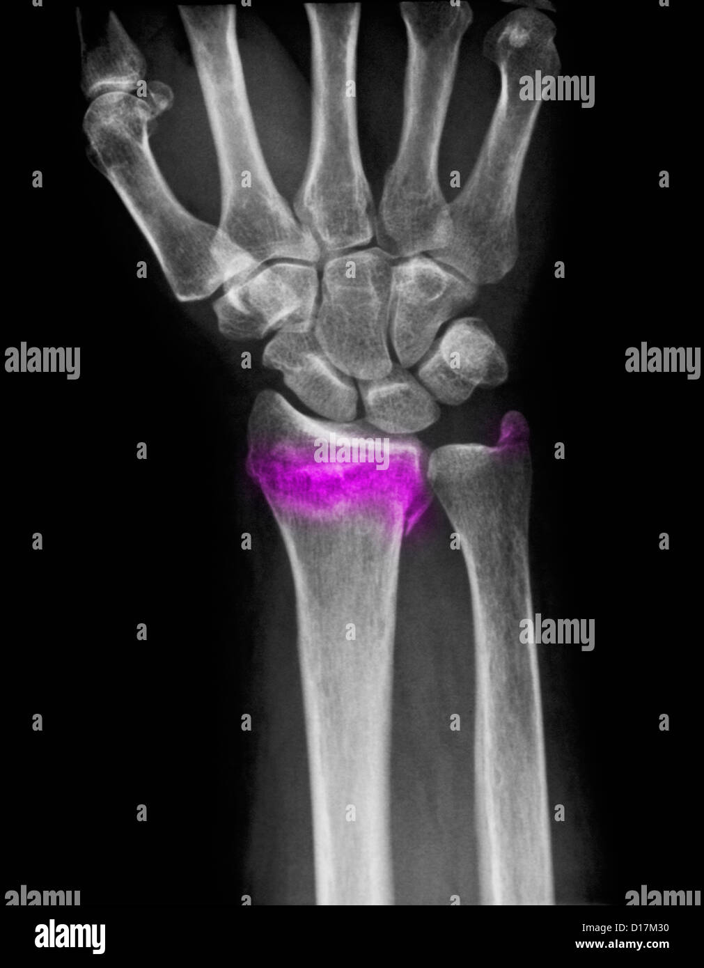 Wrist X Ray Of Comminuted Fracture Of Radius Stock Photo 52415188