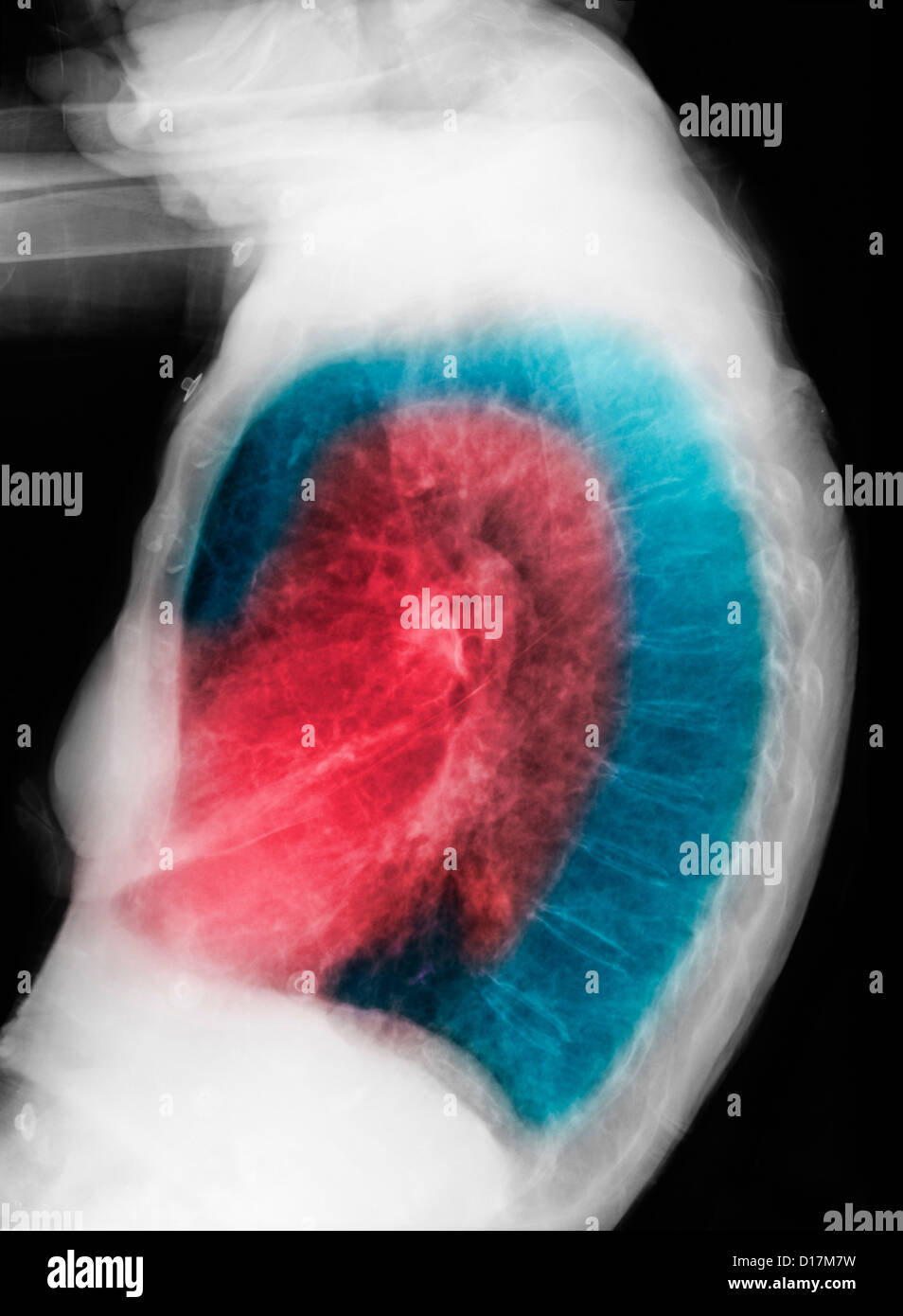 CXR of elderly woman smoker with COPD - Stock Image