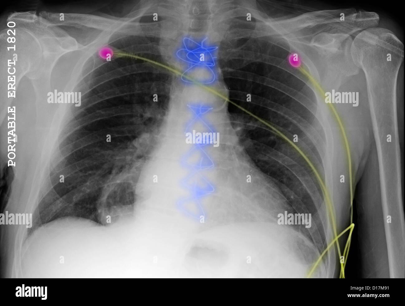 CXR of heart surgery, monitor leads, hiatal hernia - Stock Image