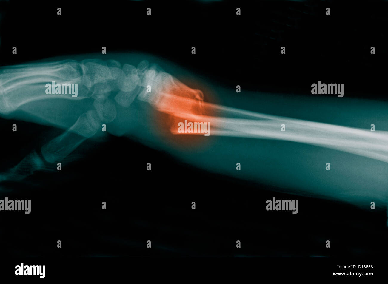 X-ray of a distal forearm fracture - Stock Image