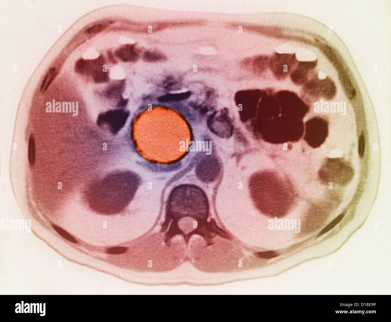 Pancreatic pseudocyst seen on MRI - Stock Image