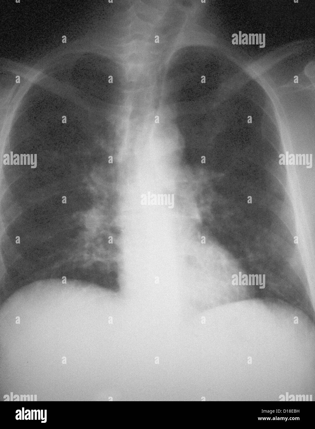AIDS patient with pneumocystis carinii pneumonia - Stock Image