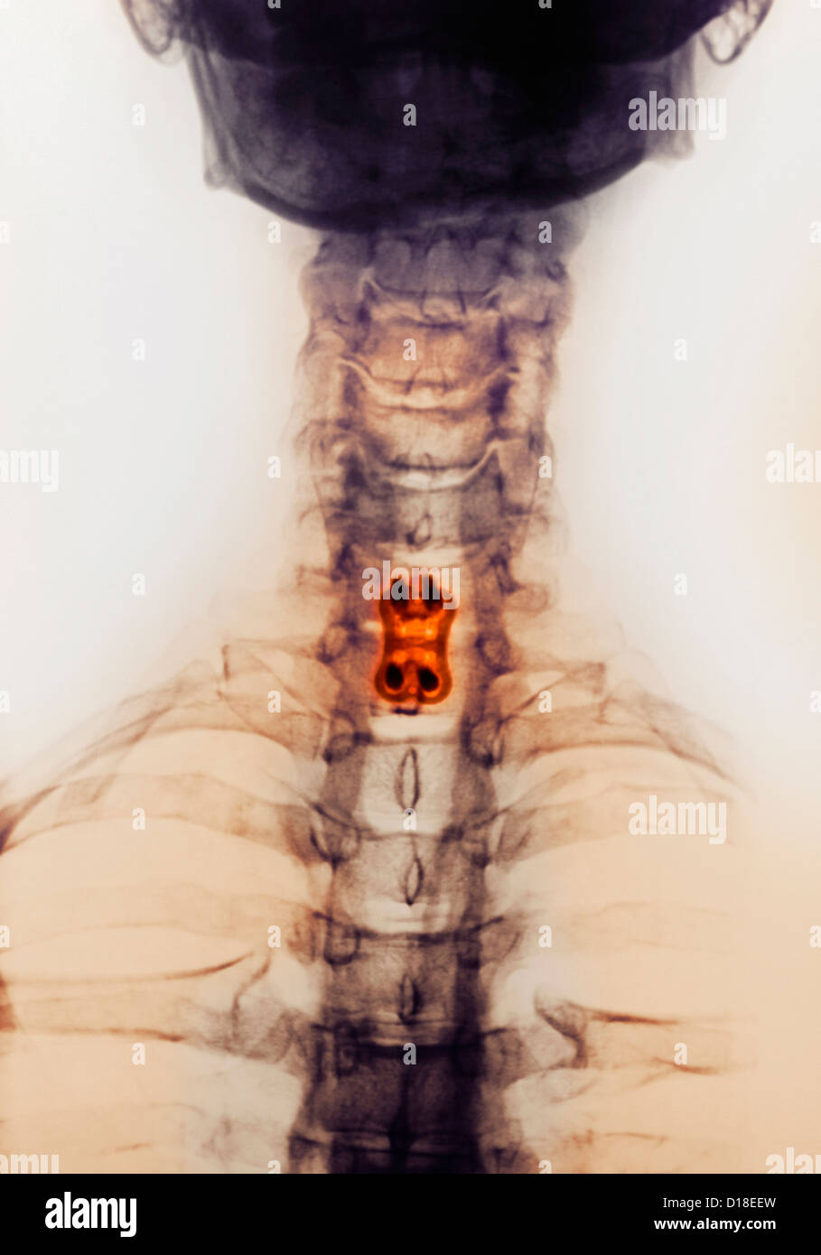 Cervical spine xray, spinal fusion, screws, plate - Stock Image