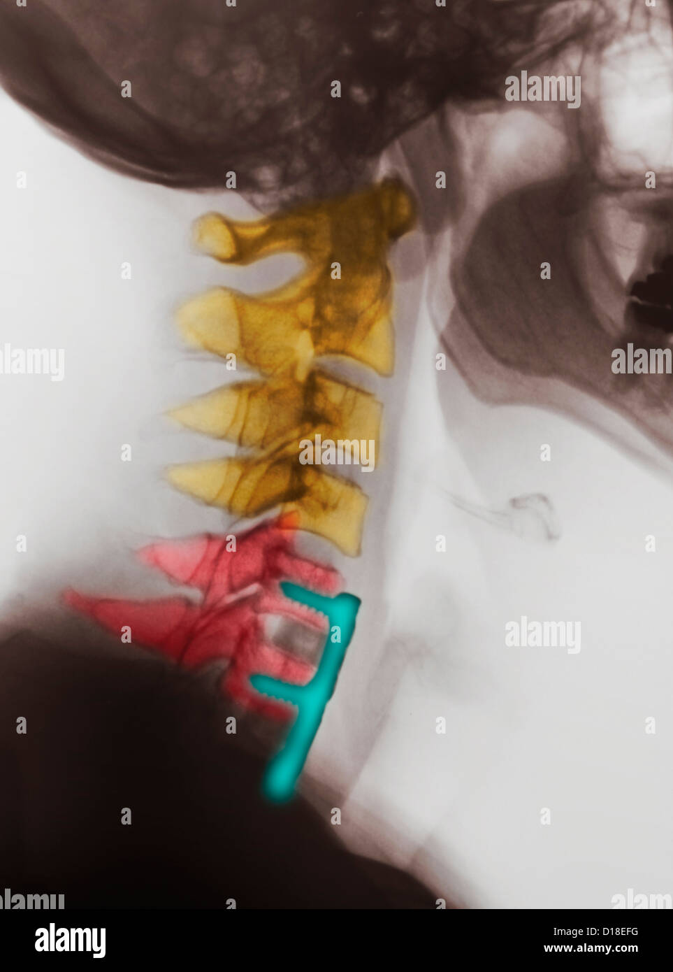 Cervical xray showing spinal fusion, C5, C6, C7 - Stock Image