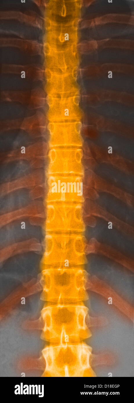 Normal X-ray of dorsal spine of 22 year old female - Stock Image