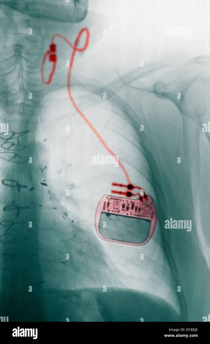 CXR with vagus nerve stimulator for epilepsy - Stock Image